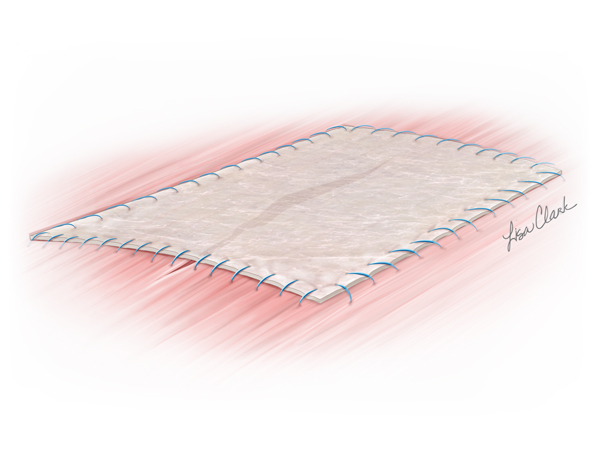 Biodesign 4-Layer Tissue Graft