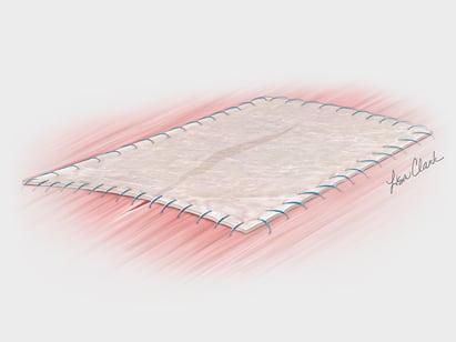 Biodesign Anal Fistula Plug Set